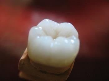 Что такое эмаль зуба